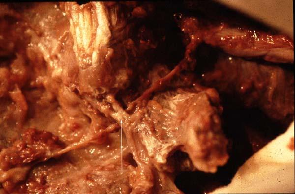 Que peut être malade à osteokhondroze du service lombaire