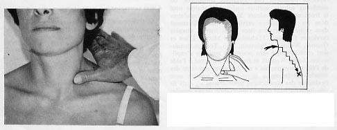 Soulager - Maladie inflammatoire de l'intestin - Canada.ca | Acide hyaluronique pas cher